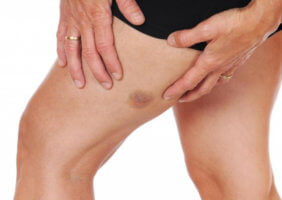Важно! Любое нарушение кожной пигментации – повод пройти обследование