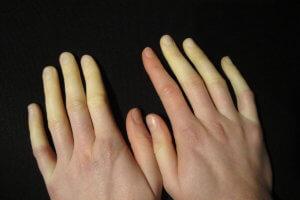 Синдром приводит к постепенным трофическим изменениям тканей
