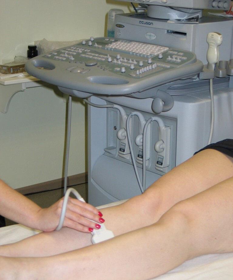 как начинается варикоз на ногах