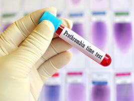 Протромбированое время - показатель времени свертываемости крови, вызванного внешними факторами