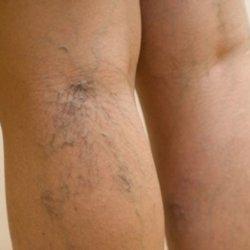 Варикоз: развитие, факторы риска, терапия, уколы от варикоза вен на ногах и побочные эффекты