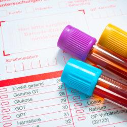 Коагулологические исследования крови: что нужно знать об этих анализах