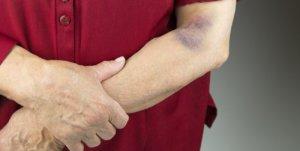 Как избавиться от гематомы после операции