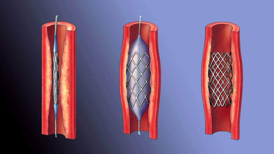 Шунтирование сосудов нижних конечностей при гангрене. Мирохирургическое шунтирование артерий ног.