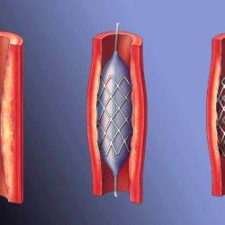Шунтирование сосудов нижних конечностей: подготовка, процедура, восстановление