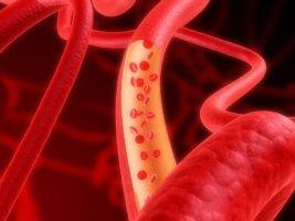 Процесс обновления крови называют гемопоэзом