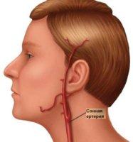 Сонная артерия отвечает за кровоснабжение головного мозга