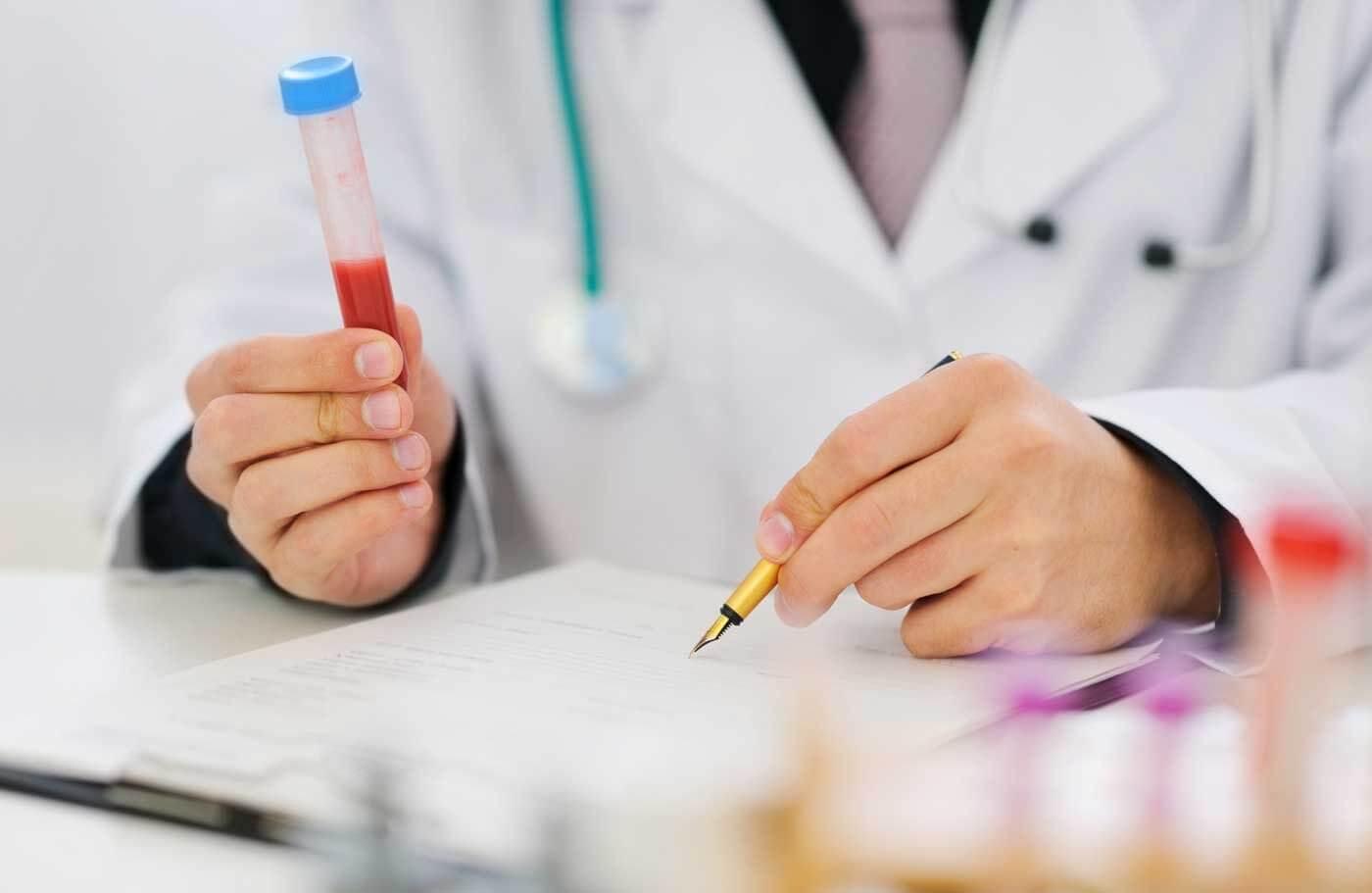 Почему повышается холестерин в крови у мужчин и как его нормализовать?