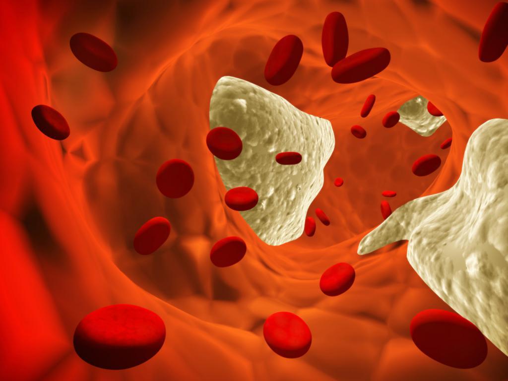 Повышенный холестерин в крови: на что влияет, чем опасен и как снизить?