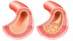 приступы стенокардии симптомы