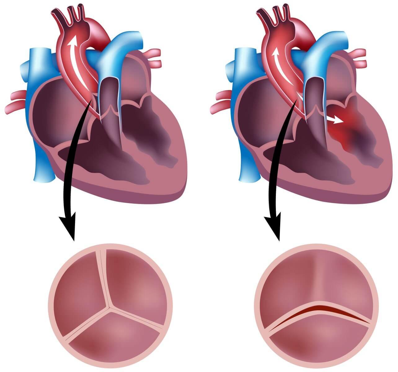 ВПС, двустворчатый аортальный клапан: факторы риска, осложнения и прогноз