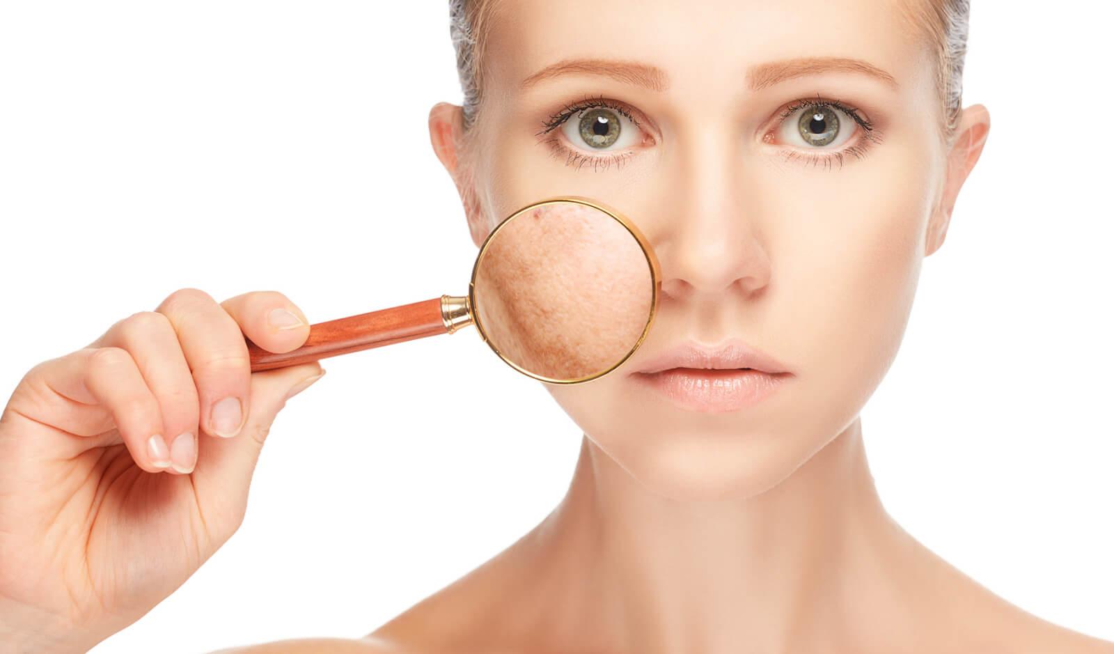 Что такое купероз на лице: этиология, клиника и терапия