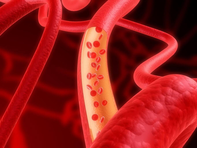 Артериосклероз: что это, симптомы, причины, последствия