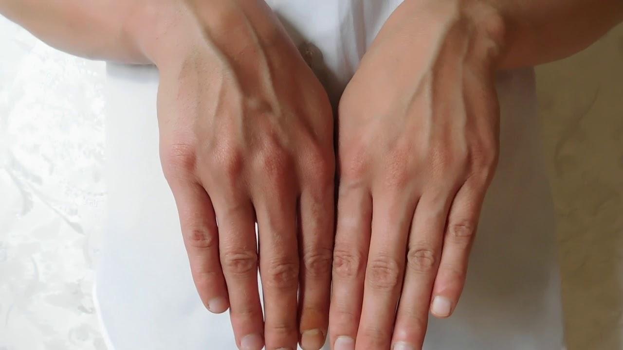 Когда сильно видны вены на руках, что нужно делать