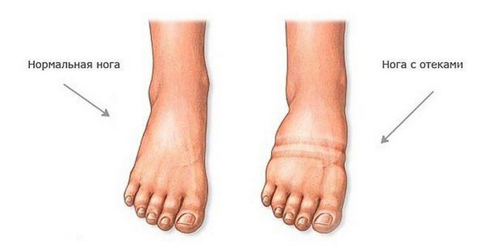 Обзор лучших лекарств от отеков ног