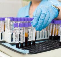 биохимический анализ крови что входит