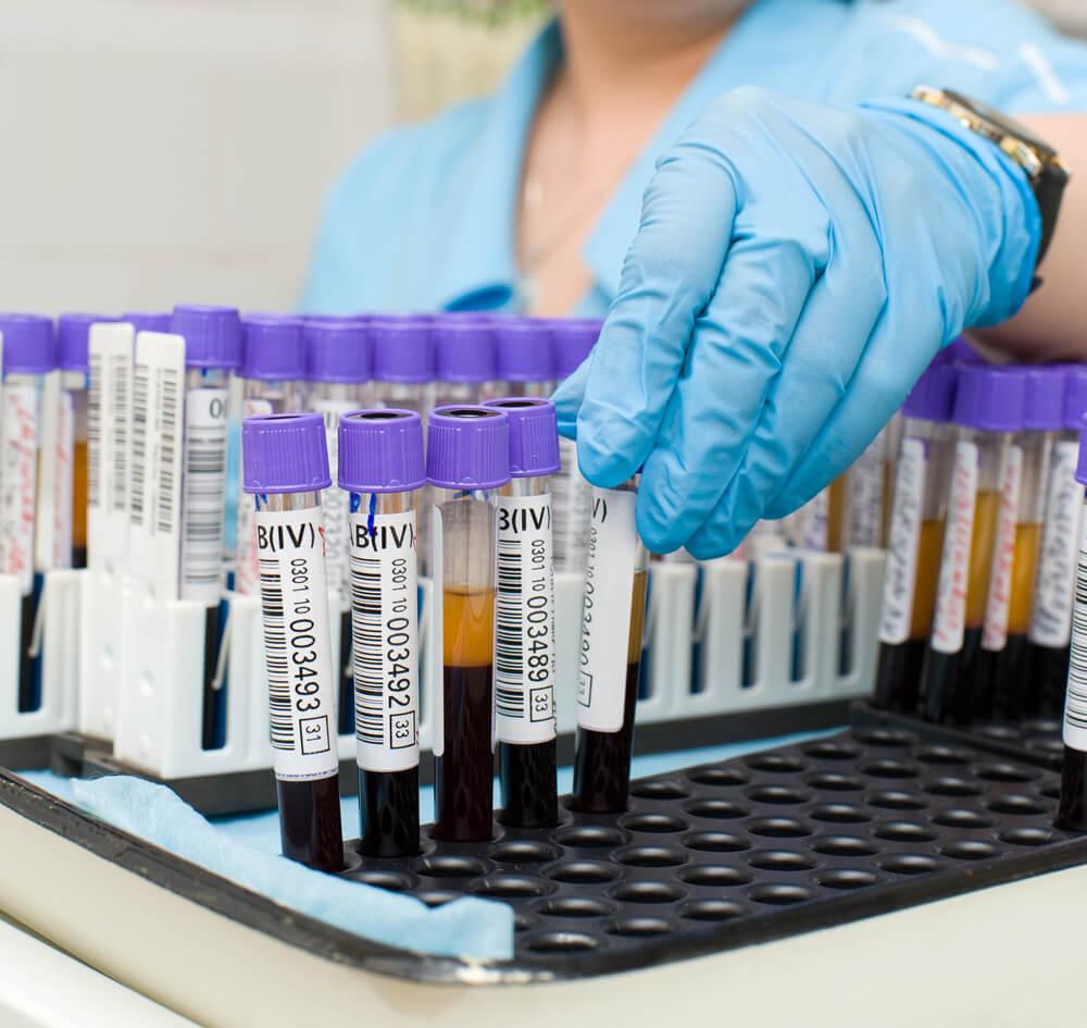Наше здоровье: биохимический анализ крови – что входит