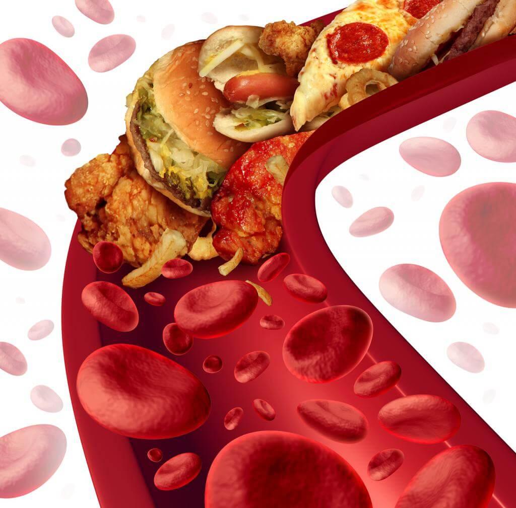 Как понизить холестерин в домашних условиях быстро народными средствами или медикаментами