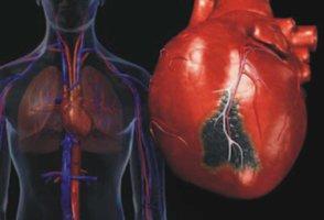 диагноз анемия