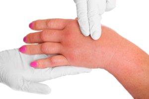 Отек кистей рук может указывать на наличие серьезного заболевания