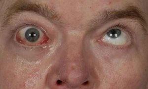Для синдрома характерна триада признаков – офтальмоплегия, арефлексия и атаксия