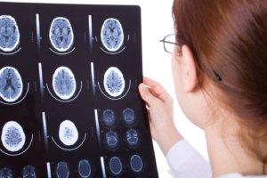 Только комплексное обследование позволит подтвердить диагноз!