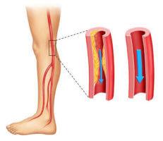 При УЗИ врач оценивает стенку, диаметр, строение сосуда и параметры кровообращения в нем