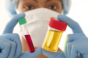 Первопричину симптома ищем по результатам анализов мочи и крови