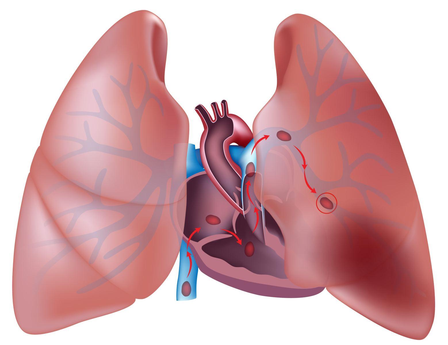 Симптомы, основные характеристики и методы лечения сердечной астмы