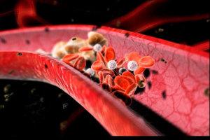 Патология может стать причиной тромбоза сосудов