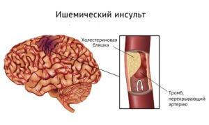 от чего бывает инсульт