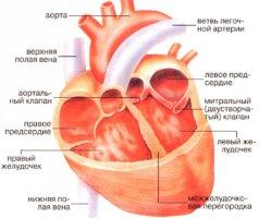 мскт сердца