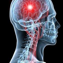 Основные сведения о том, от чего бывает инсульт