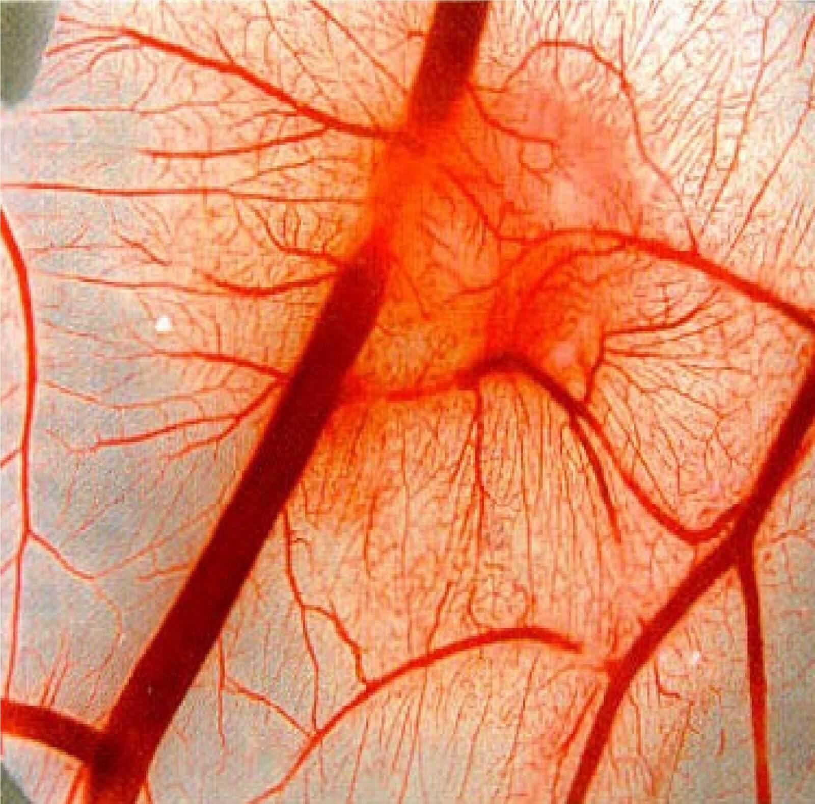 Ангиопатия сосудов: причины появления, диагностика и лечение