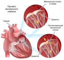 Что такое ПМК сердца и его отличия от других приобретенных пороков