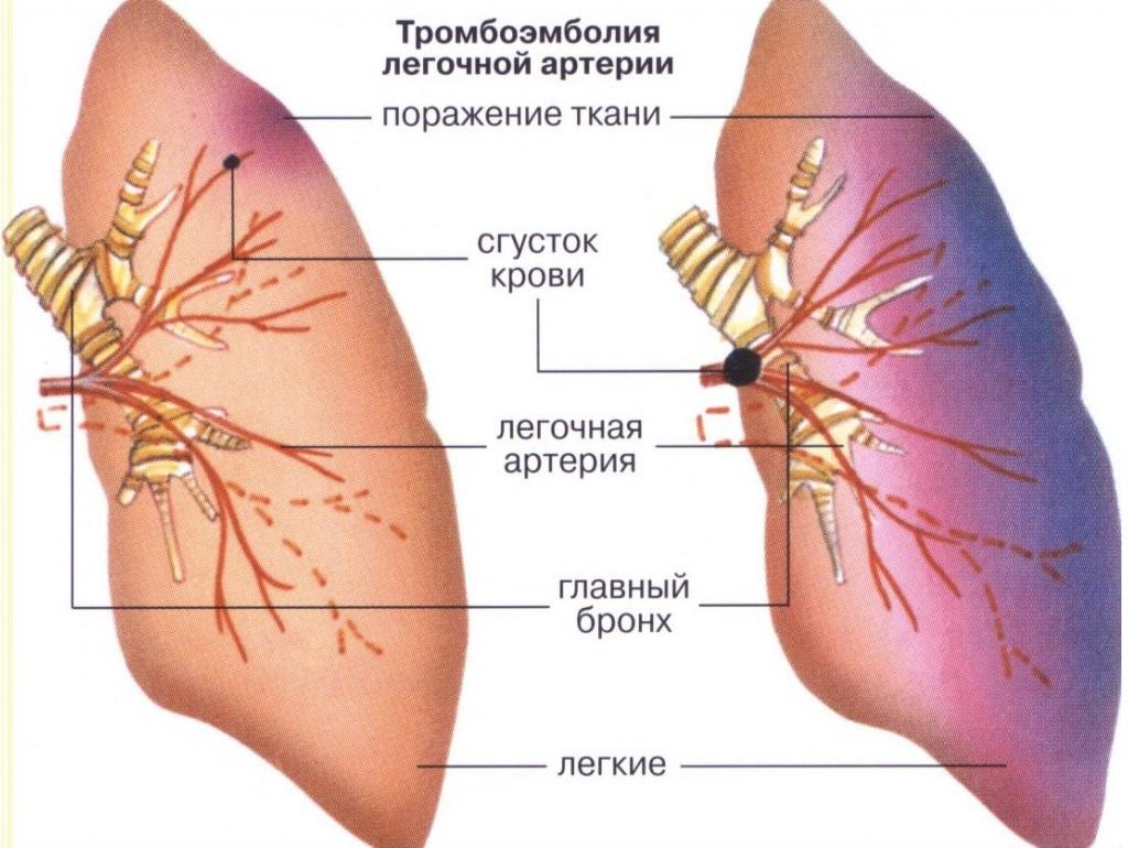 Чем опасна тромбоэмболия легочной артерии, ее симптомы и лечение