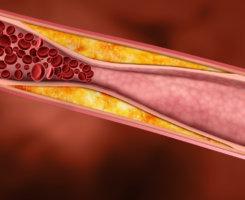 Высокий уровень холестерина может стать причиной атеросклероза, инфаркта и инсульта