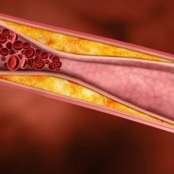 Чистка сосудов от холестерина – мед и корица: свойства и рецепты