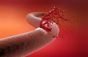 Транексам принимают риске развития кровотечений или их наличии