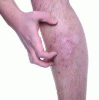 Чешутся, беспокоят и болят вены на ногах – почему это происходит