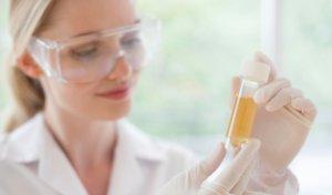 При подозрении гестоза нужно сдать анализ мочи на белок