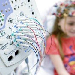 Когда, как и для чего проводится ЭЭГ сна ребенку?