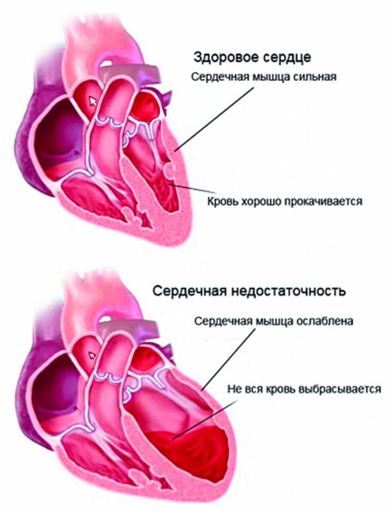 жмёт сердце причины