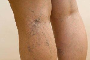 Признаки варикоза ног у женщин: как распознать патологию и начать ее лечить