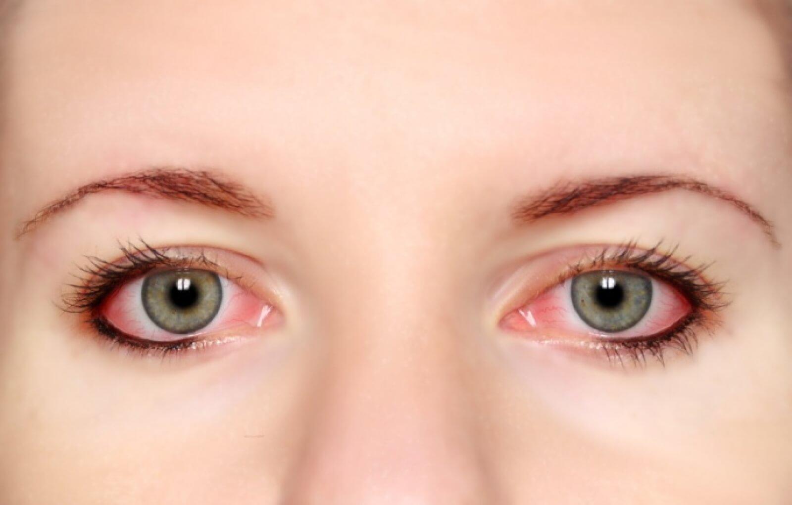 Что нужно делать, и к какому врачу обратиться, если лопаются сосуды в глазах
