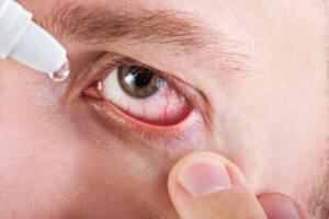 что делать если лопаются сосуды в глазах
