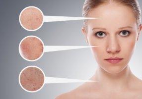 Почему появляются капилляры на лице, и как избавиться от купероза