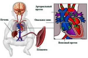 порок сердца у новорожденных симптомы