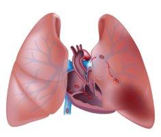 ТЭЛА – это внезапная закупорка ствола или ветвей артерий, снабжающей легкие кровью, эмболом