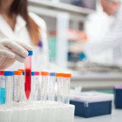 Коагулогическое исследование крови — что это за анализ и о чем он может рассказать?